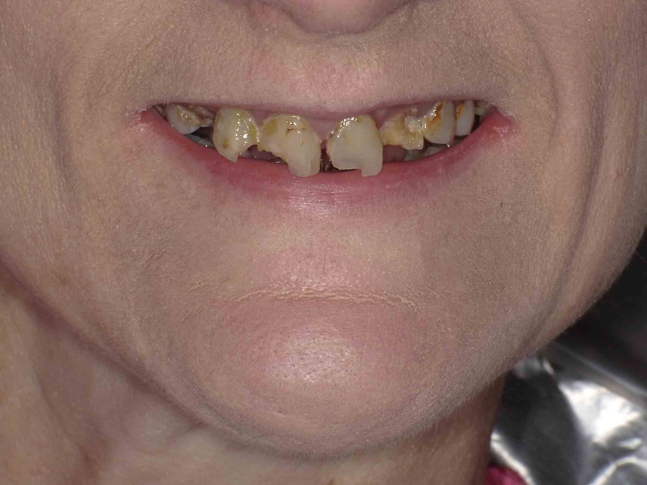 Single-Tooth replacement options east texas dallas tyler longview shreveport