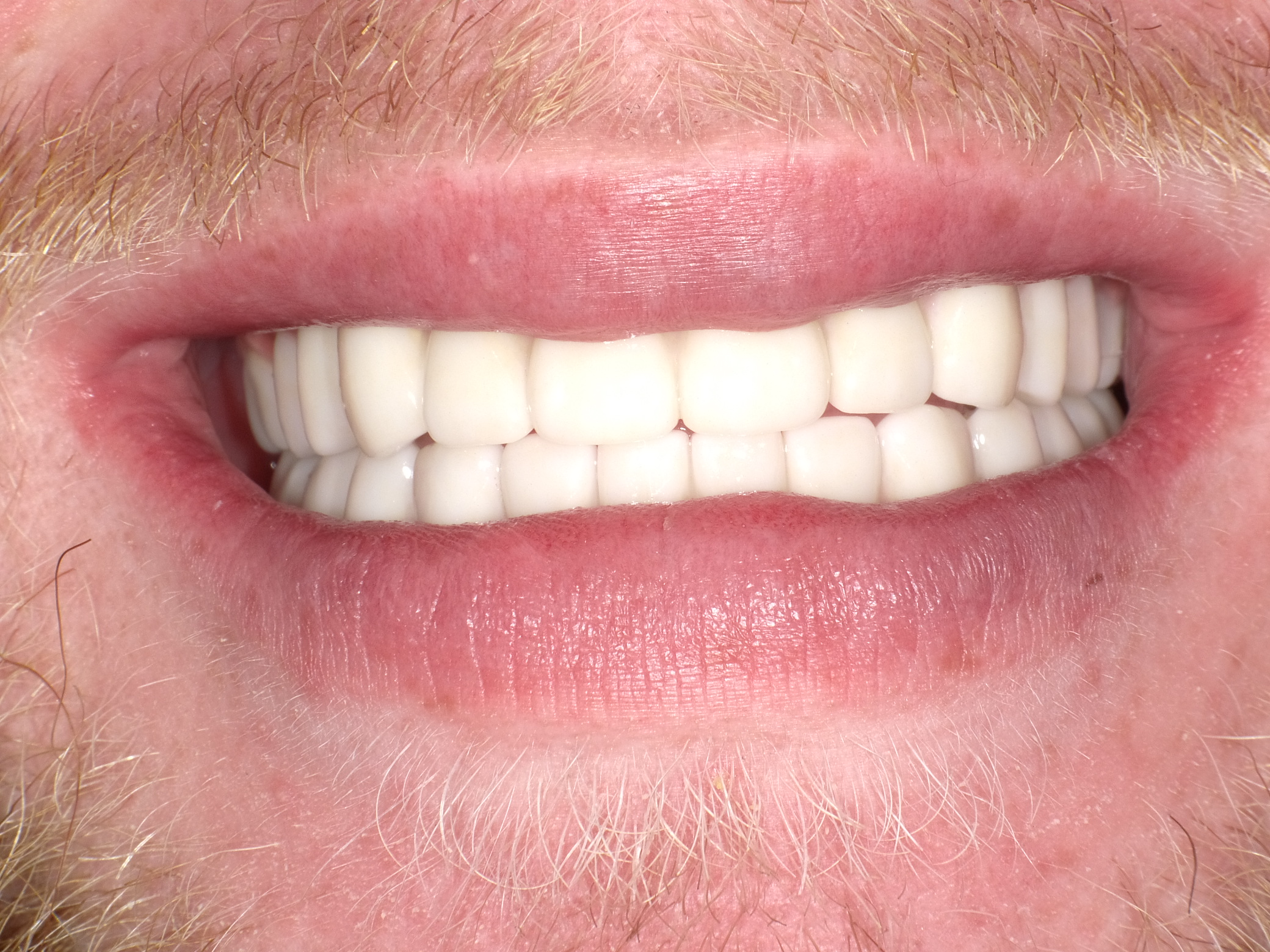 Texas Sedation Dental Center and Implant Smile After All On Four