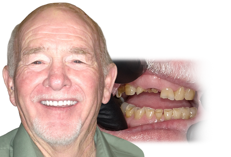 Patient Before and After Transparent All On Four Texas Sedation Dental and Implant Center Dallas Tyler Longview Shreveport