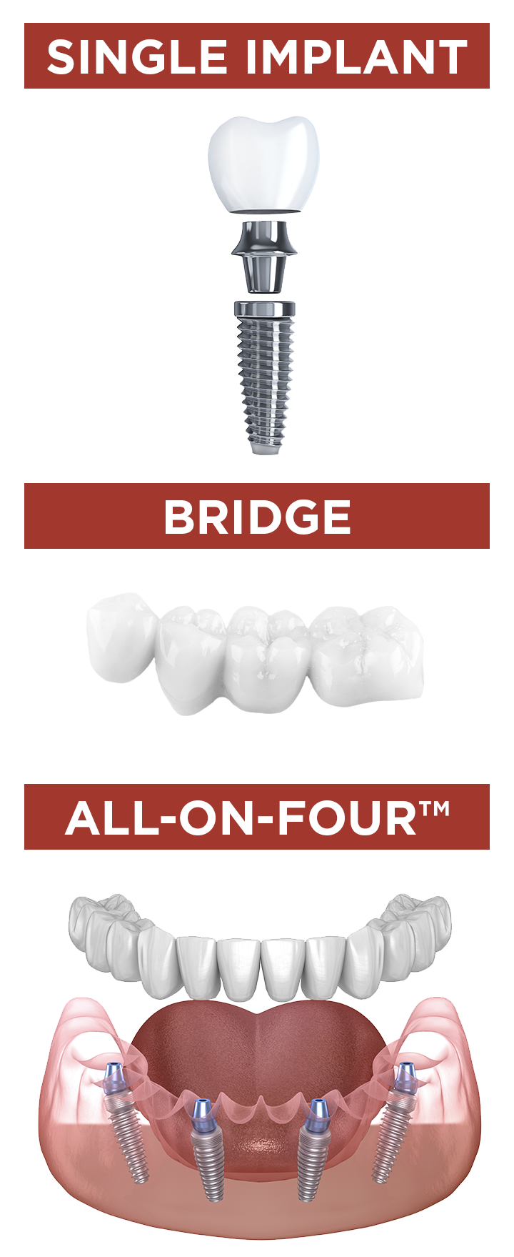 Types of Implants All on Four Crown Abutment Post Screw Texas Sedation Dental and Implant Center Shreveport Dallas Longview Tyler